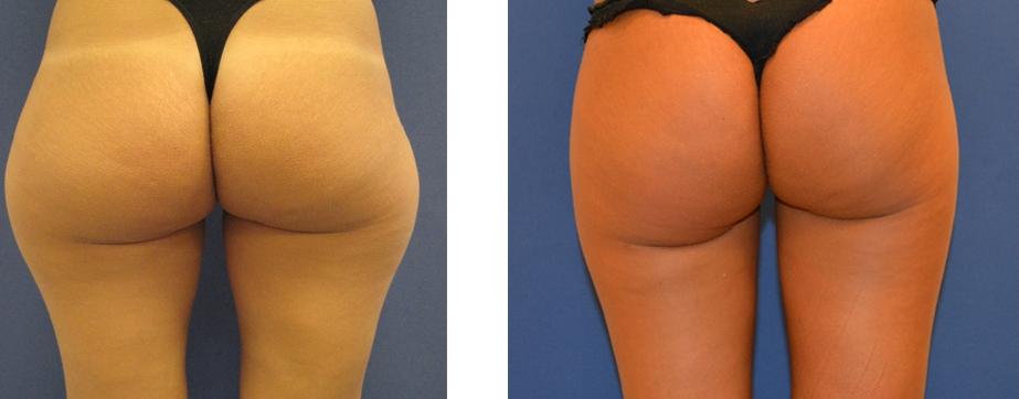 Lipolaser brazos antes y despues de adelgazar